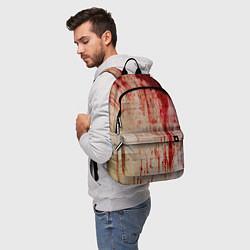 Рюкзак Бинты 1 цвета 3D-принт — фото 2